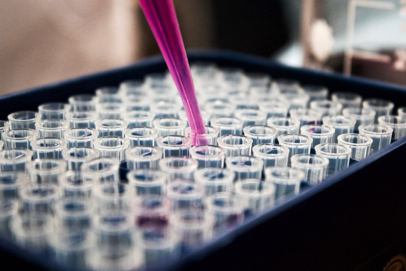 refill of liquid in test tubes - medical industry